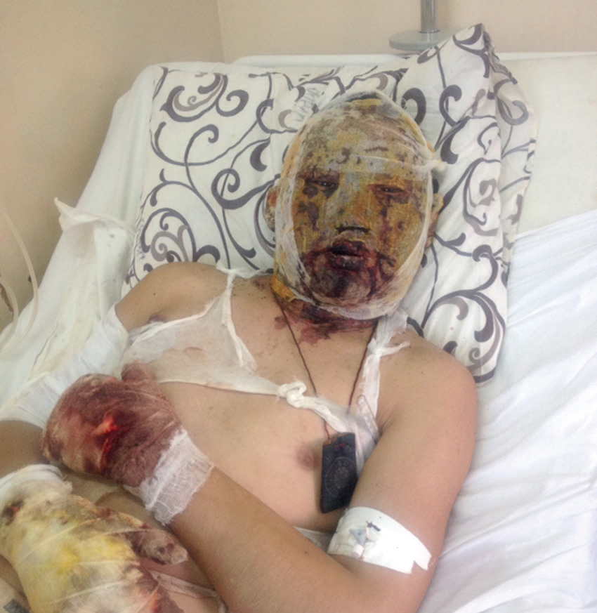 Доржи Батомункуев в госпитале после ранения под Дебальцевым